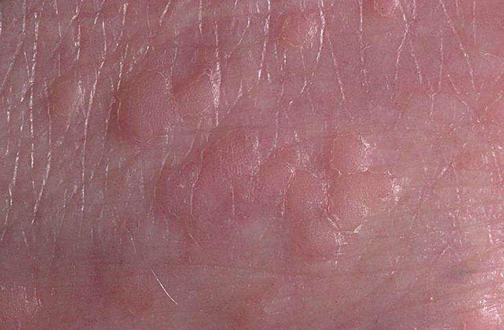 Кондиломы эндофитной формы
