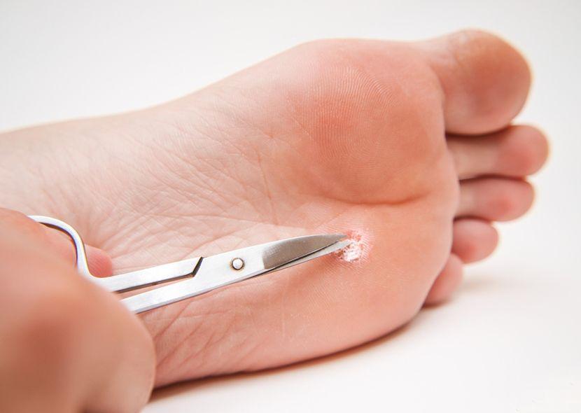 Лечение бородавки на стопе